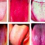 Mengetahui Jenis Penyakit dari Warna Lidah